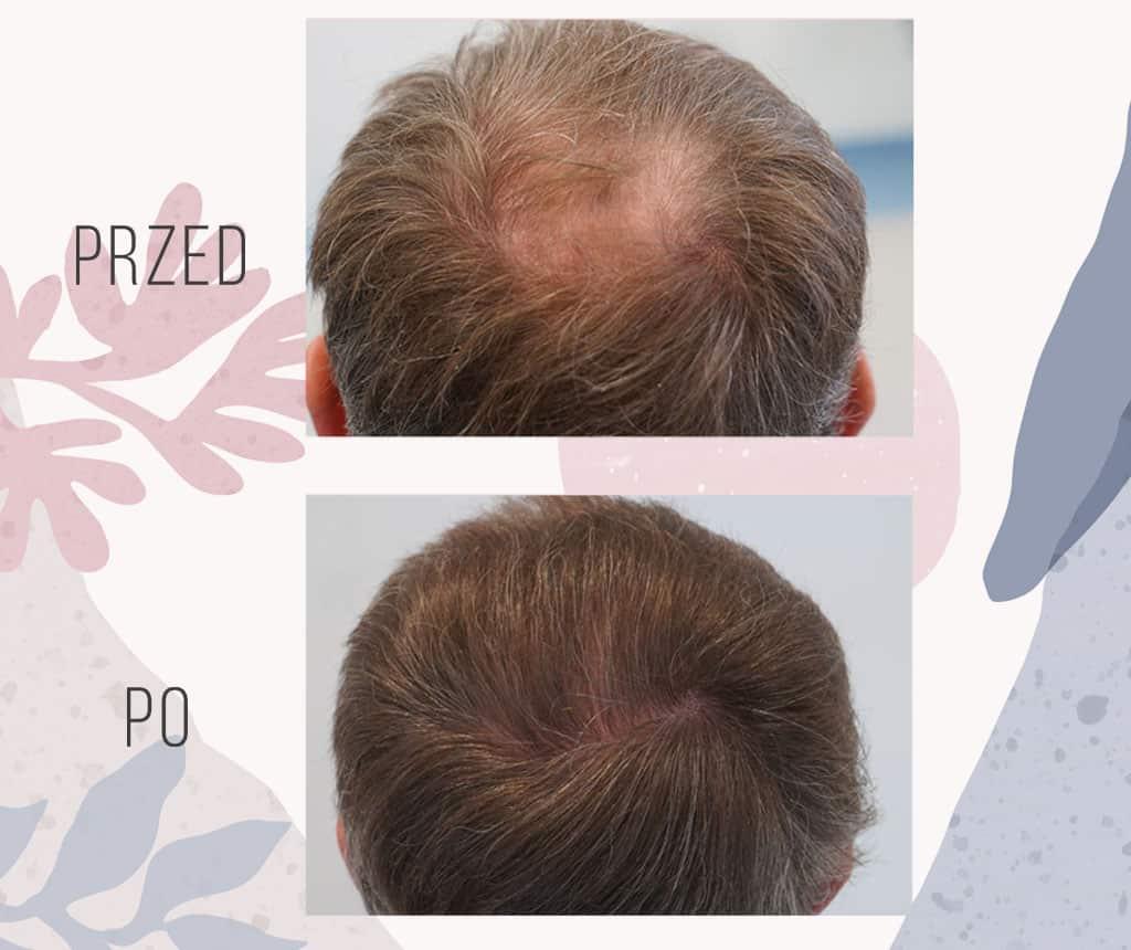 Efekt przeszczepu włosów w Klinice OT.CO