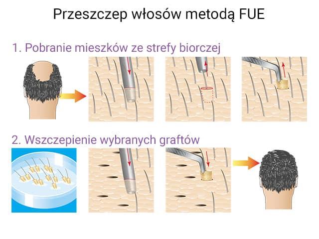 Przeszczep włosów FUE - wizualizacja